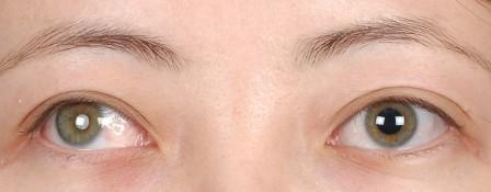 Глазное протезирование в германии